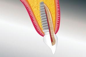 Vergleich Implantat / natürlicher Zahn